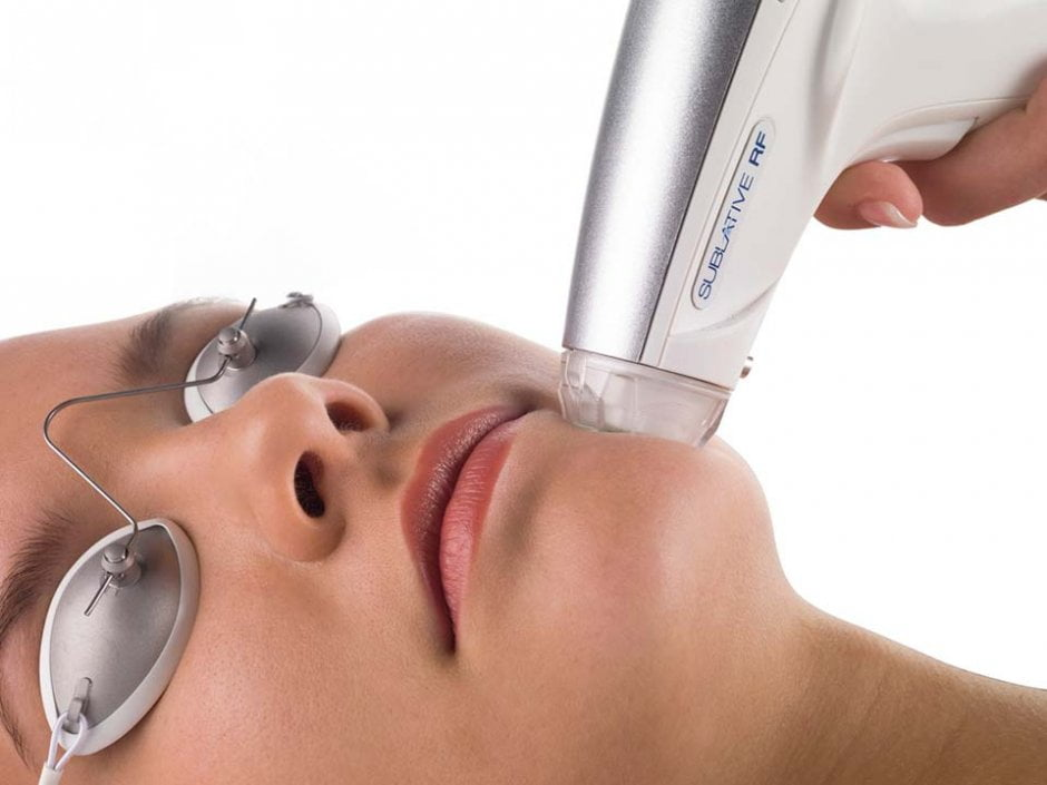 Elos Sublative RF huidverjonging behandeling