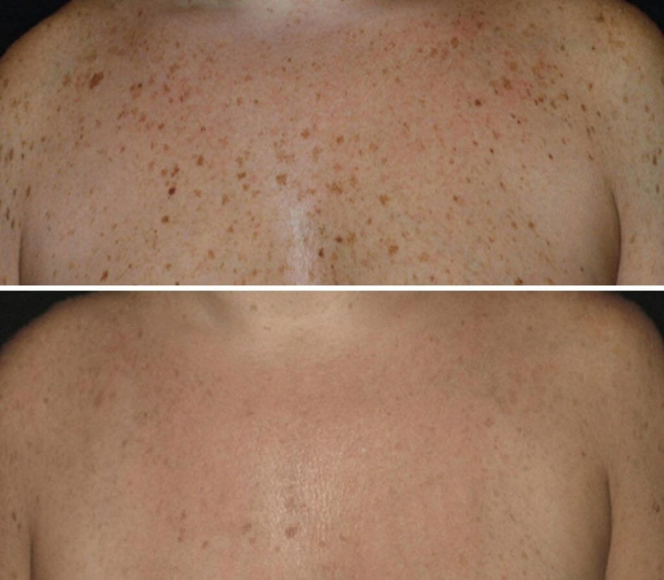 Voor en na foto pigmentbehandeling