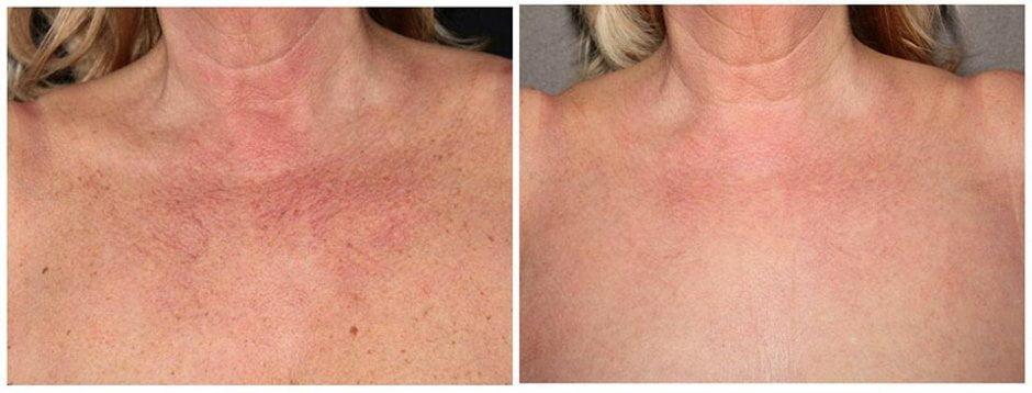 Voor en na foto behandeling rode adertjes