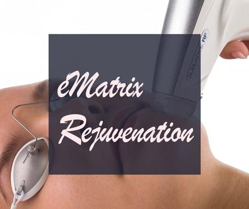 E-Matrix rejuvenation